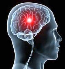 شایعترین علت سکتههای مغزی چیست؟