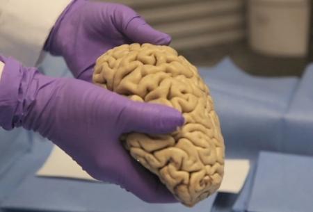 بانک مغز روزنهای به سوی بیماران سیستم عصبی
