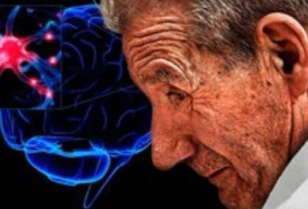 تجمع لیپید در مغز، نشانه اولیه بیماری پارکینسون