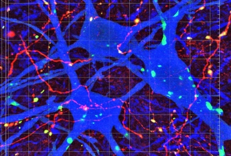 نقشه اتصالات عصبی مغز و نخاع تدوین شد