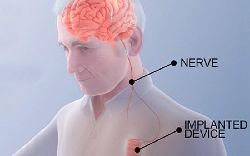 توانبخشی پس از سکته با شبیهسازی مغزی