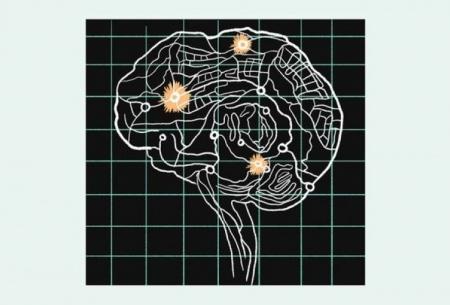 کمک هوش مصنوعی در پی بردن به اسرار مغز