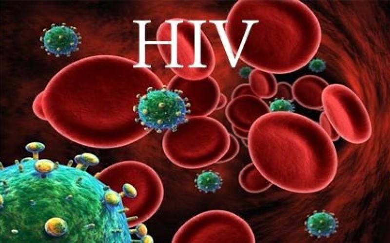 رابطه ویروس HIV با افزایش خطر زوال عقل