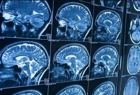 مکانیسمی برای تنظیم مایع مغزی نخاعی