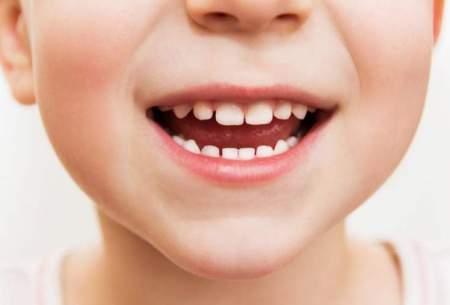 """ترمیم دندان کودکان با """"سلولهای بنیادی"""""""
