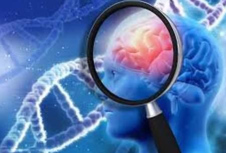 شناسایی یک تغییر ژنتیکی موثر بر بیماری مغزی