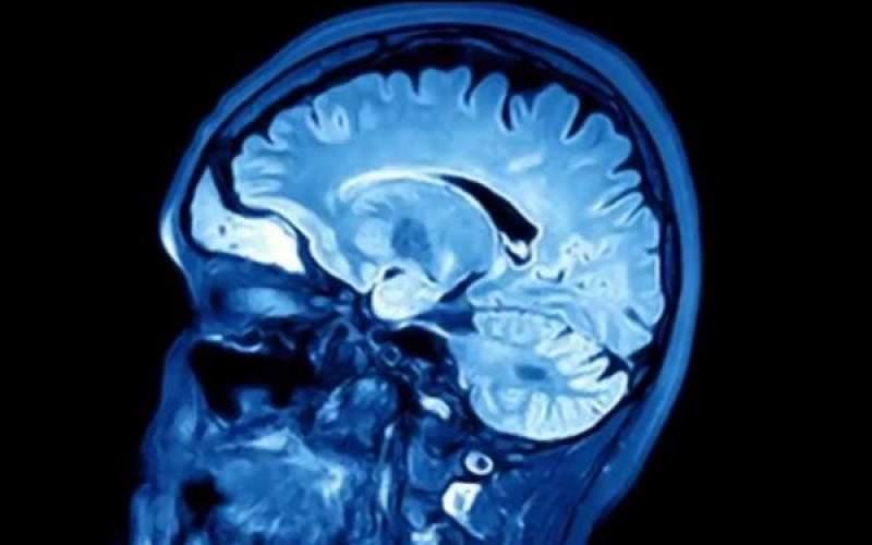 تشخیص زودهنگام زوال عقل با اسکن گردن