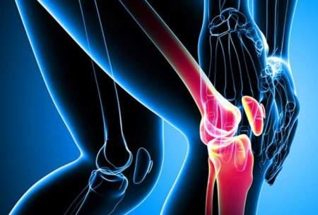 کاهش سن پوکی استخوان به زیر 30 سال