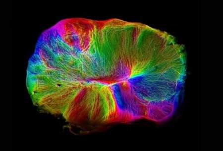رشد یک مغز کوچک در دست دانشمندان