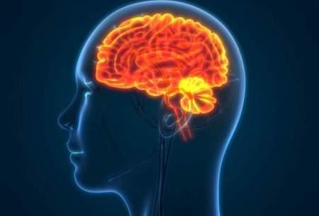 درمان تورم مغز پس از سکته با کمک ژندرمانی