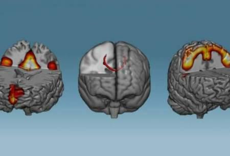 با آموزش مغز آن را تغییر دهید