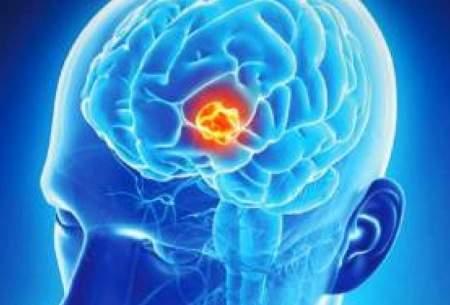آموزش؛ «مغز» سالمندان را جوان نگه میدارد