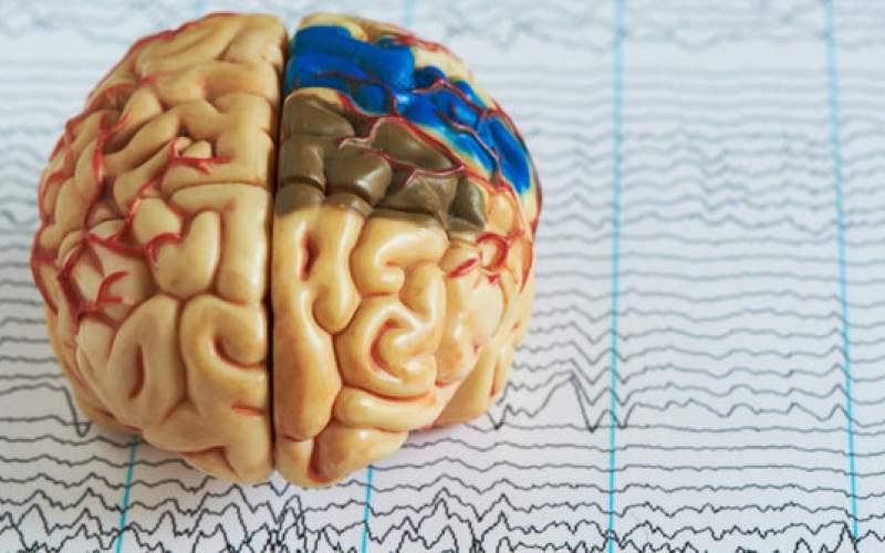 مغزحین خواب خاطرات غیرضروری راپاک میکند