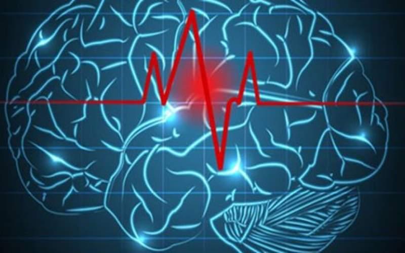 رصد جریان خون در مغز به کمک دستگاه ایرانی
