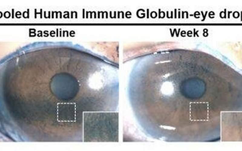 درمان خشکی چشم باقطرههای حاوی پادتن