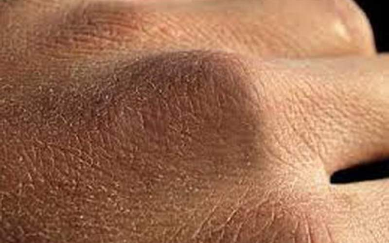 ویروس کرونا و خشکی پوست