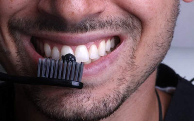۱۳روش ارزان و خانگی برای سفید کردن دندانها