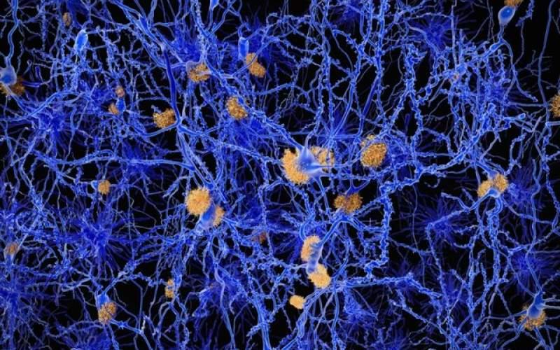 نشانه اولیه آلزایمر در مغز کشف شد