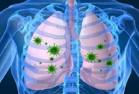 ریه در برابر ویروس کرونا ضعیف است