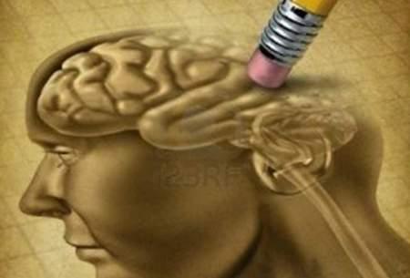 چاقی شکمی باعث کوچک شدن مغز میشود