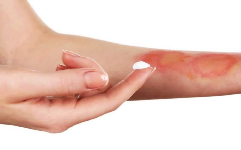 ۶ نسخه خانگی برای درمان آفتاب سوختگی