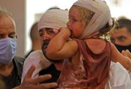 ۸۰ هزار کودک از انفجار بیروت تاثیر گرفتند