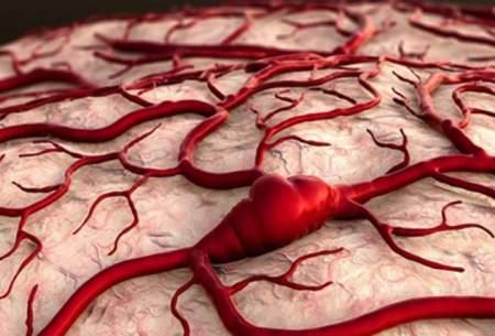 نشانههای ابتلا به «آنوریسم مغزی»