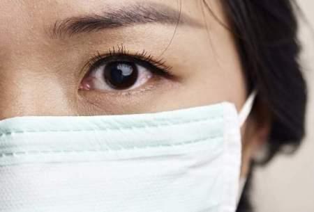 عارضه جانبی جدید مرتبط با استفاده از ماسک