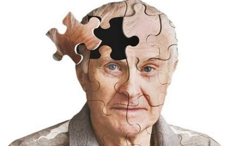 چگونه از ابتلا به آلزایمر پیشگیری کنیم؟