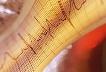 آمار مرگ و میر به علت بیماری های قلبی
