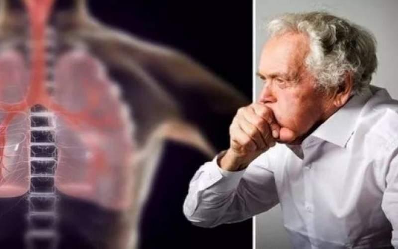 علائم هشداردهنده سرطان ریه که بایدجدی بگیرید