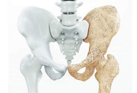 علل پوکی استخوان چیست؟