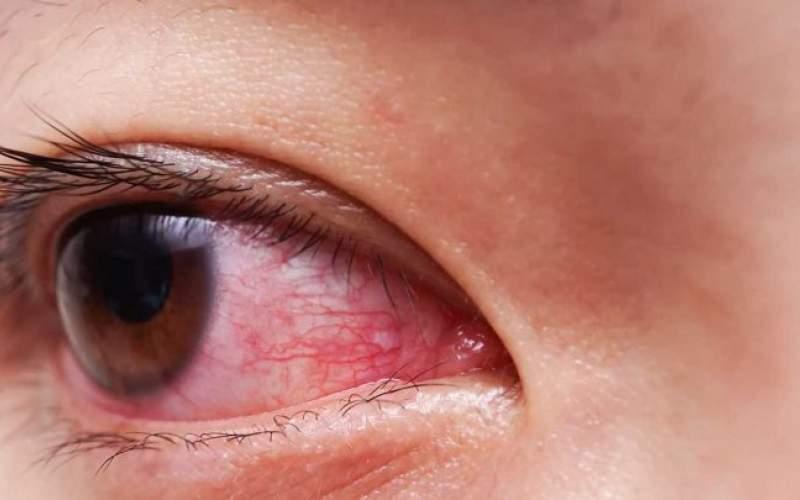 قرمز شدن چشم هم علامتی از کروناست