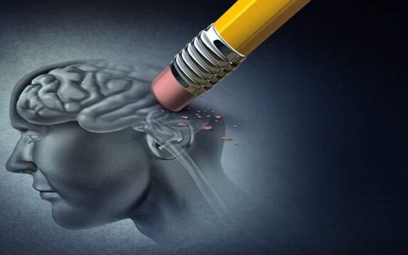 بیماری آلزایمر شایع ترین نوع زوال عقل در جامعه