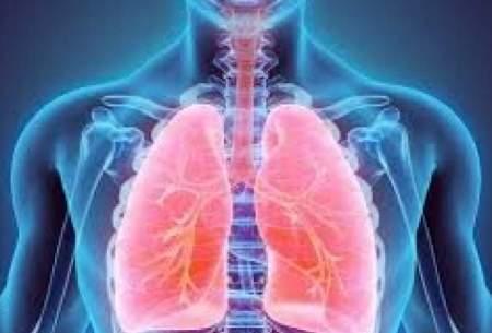 ورزشی برای افزایش کیفیت زندگی بیماران تنفسی