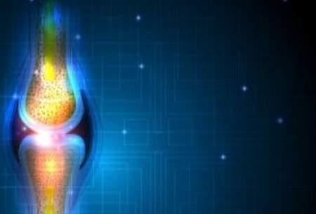 درمان اختلالات استخوان با کمک نوعی سلول