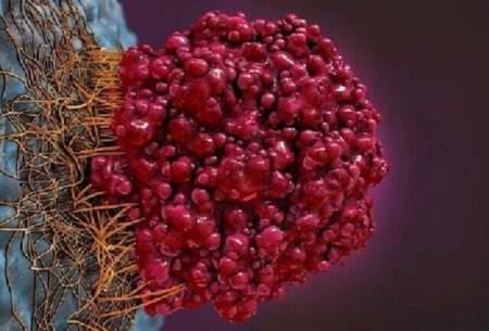 علائم سرطان روده را بشناسید