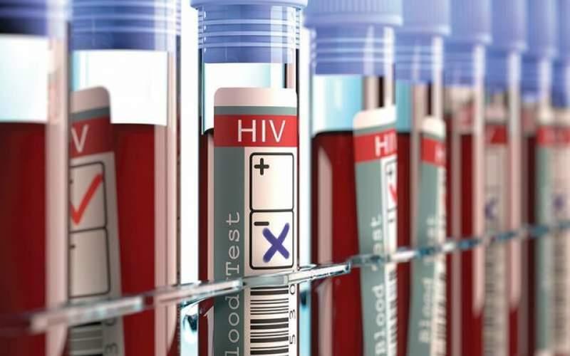 تبعات ویروس کرونا بر ارایه خدمات ایدز