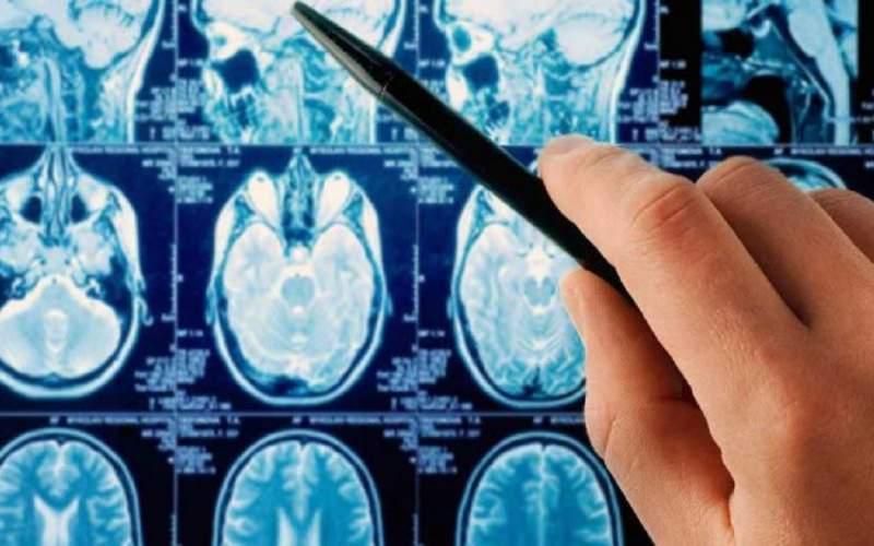 آسانترین روش تشخیص مرگبارترین سرطان