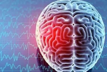 محققان دستگاه تصویربرداری نوری از مغز را ساختند