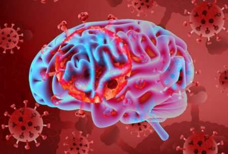 کروناویروس می تواند وارد مغز شود