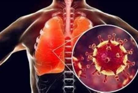 عوارض کروناویروس بر ریه چقدر است؟