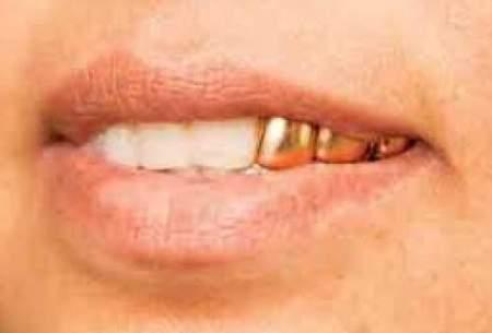 دستگیری دزدِ دندانِ مردگان
