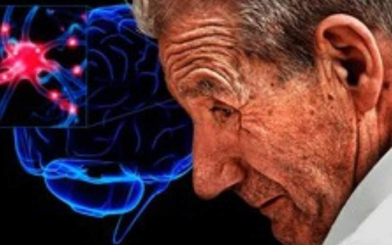 افزایش ابتلا به پارکینسون در بیماران اسکیزوفرنی
