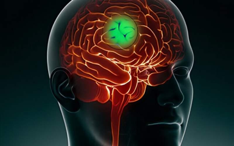 کاهش گسترش سرطان مغزبا کمک مسیرسلولی