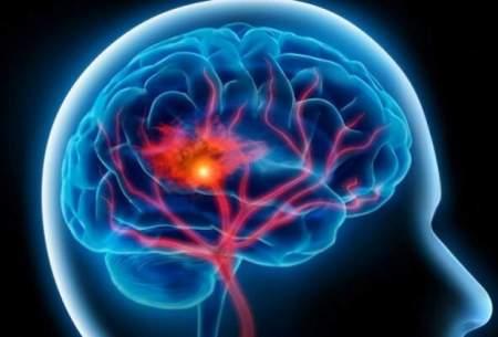 عامل ژنتیکی که باعث سکته مغزی میشود