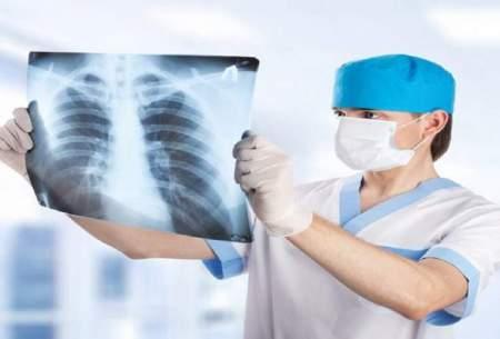 سن ابتلا به سرطان سینه درایران کاهش یافته است
