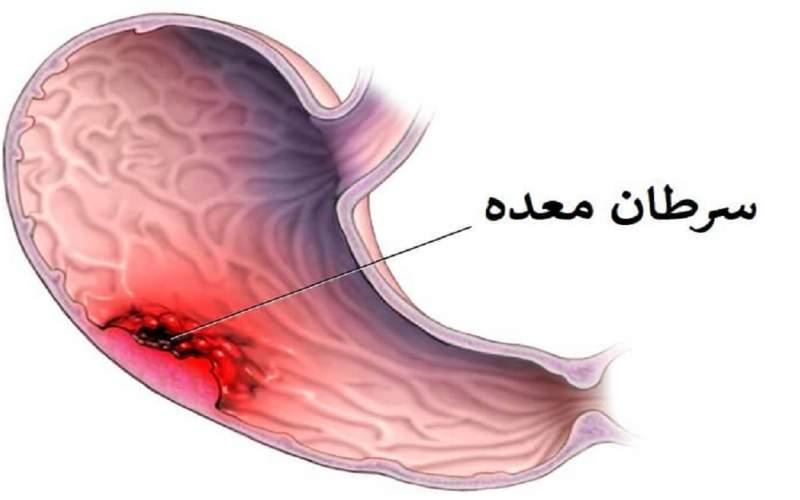 سرطانهای دستگاه گوارش قابل پیشگیری هستند