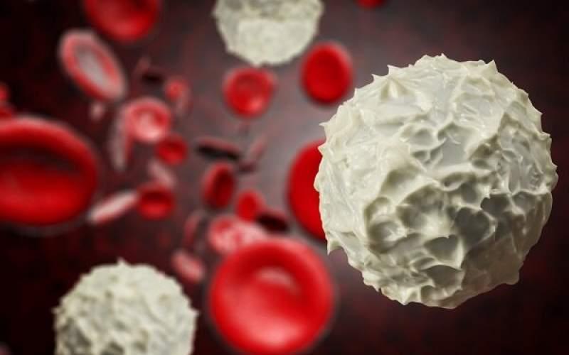 ابداع سیستم لیزری دقیق برای درمان سرطان