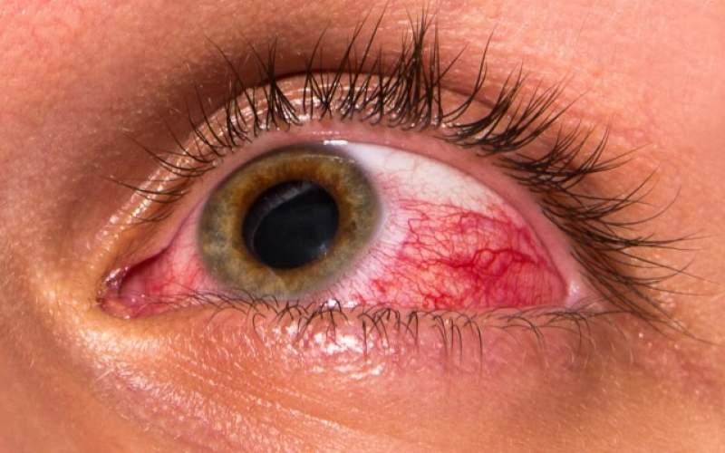 خطرات مواد ضدعفونی کننده دست برای چشم ها